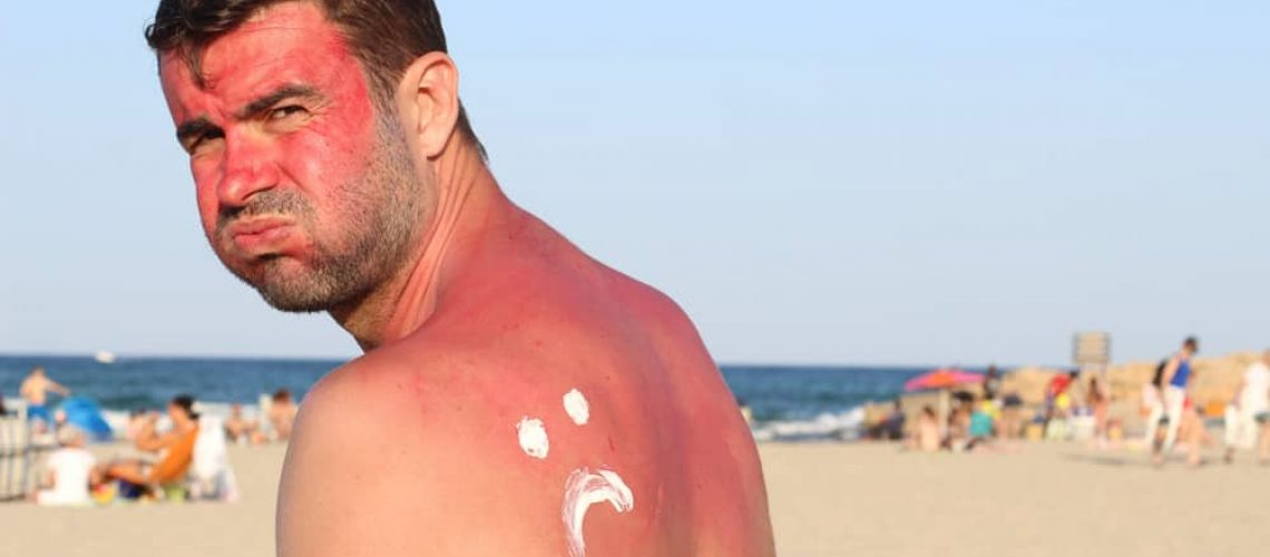 natural-sunburn-remedies